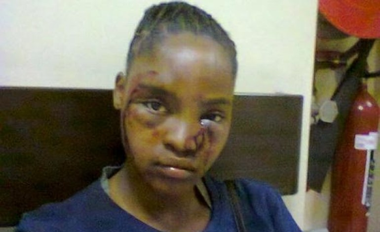Sad! Girl reveals how her boyfriend battered her brutally with pic evidence