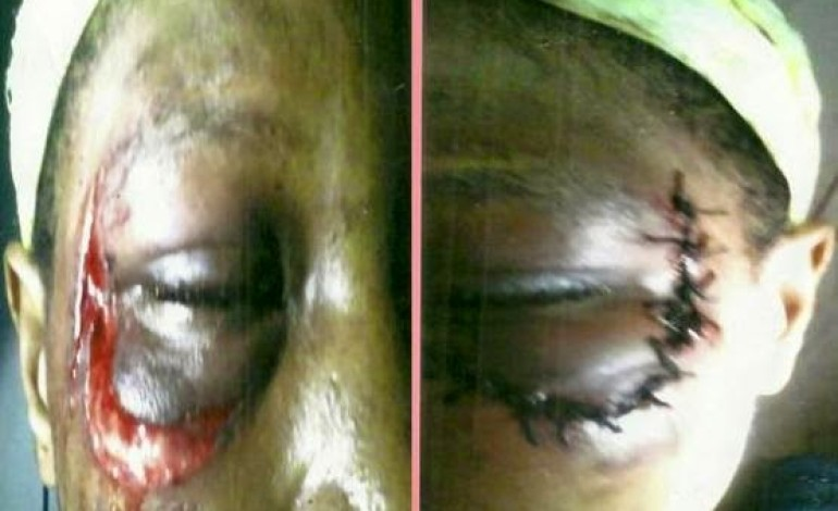 Woman who was brutally beaten by her husband over fish gets her day in court