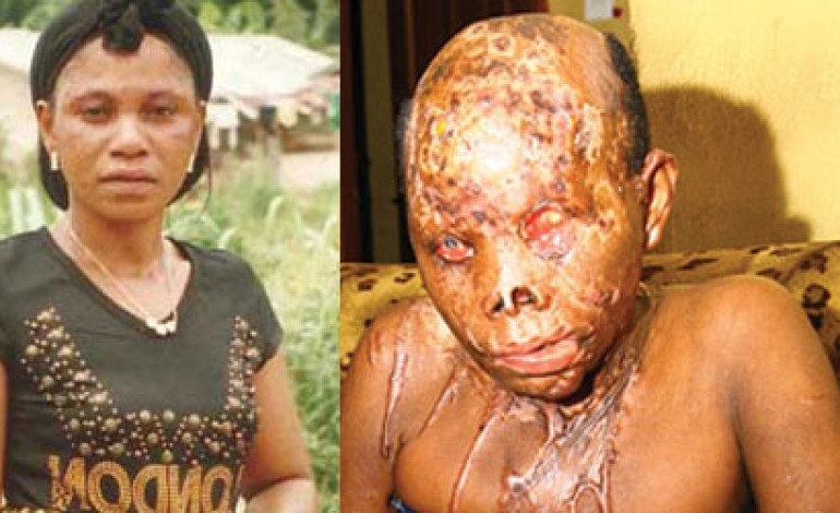 Married man ends up in jail after acid attack on lover