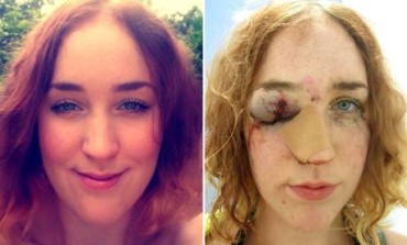 Woman Shares Horrific Selfie After Being Punched In The Face By Man For Telling Him Off