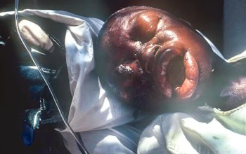 OMG! End time Close,PHOTO: Another Deadly Virus Surfaces – Marburg Haemorrhagic Fever (MHF)