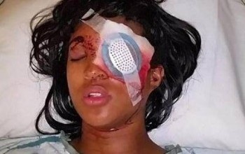 Injustice! Pregnant Mother Of Two Loses An Eye After Being Shot By St. Louis Cops With Bean Bag Round