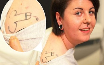 See Woman Who Got Drunk & Gets Most Embarrassing PENIS Tattoo On Her Shoulder