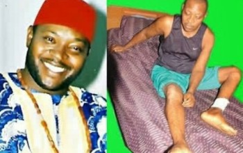SO SAD: Another Popular Nollywood Actor Is Dying, Recounts Horrible Ordeal