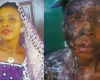 #Domestic #Violence: Man baths ex-lover with acid in Kogi state