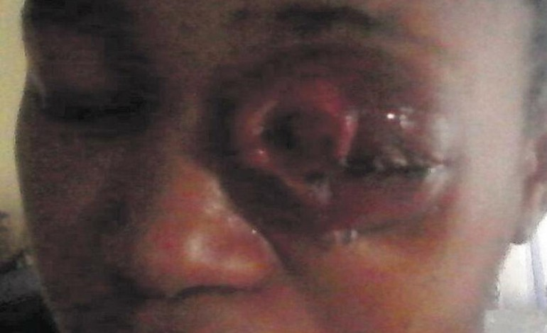 #DomesticViolence – HIT BY LOVE CURSE!