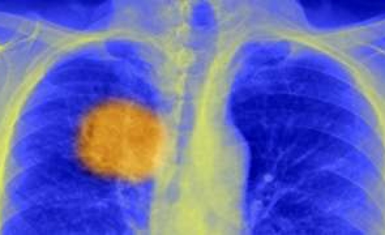Scientists 'find cancer's Achilles heel'