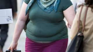 Obese patients face NHS surgery ban to save money