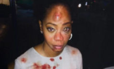 'Spider-Man 3' Actress Attacked By Nightclub Owner Over Cab